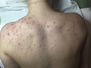 Back Acne week 1